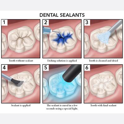 dental sealant thumbnail