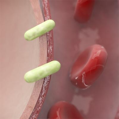 tuberculosis thumbnail