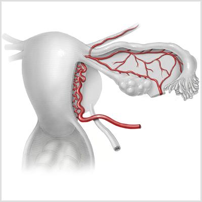 uterine artery thumbnail